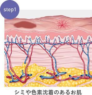 step1:シミや色素沈着のあるお肌