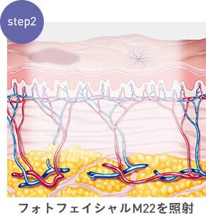 step2:フォトフェイシャルM22を照射