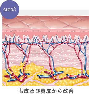 step:3表皮及び真皮から改善